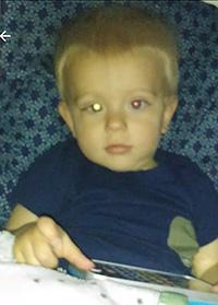 Pupil flash sign of Retinoblastoma